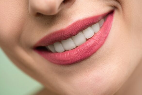 whitening kits with light