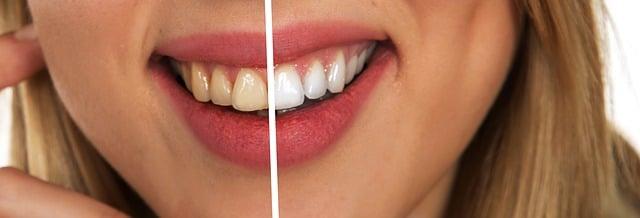 How To Buy Best Teeth Whitening Kits In 2021?